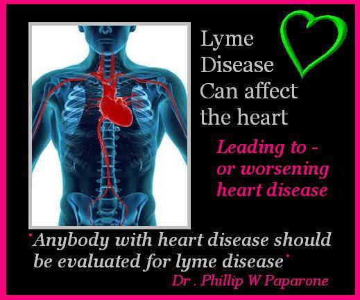 heart and lyme